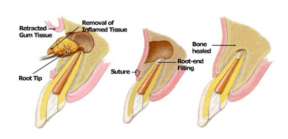 Image result for APICOECTOMY (ENDODONTIC SURGERY)